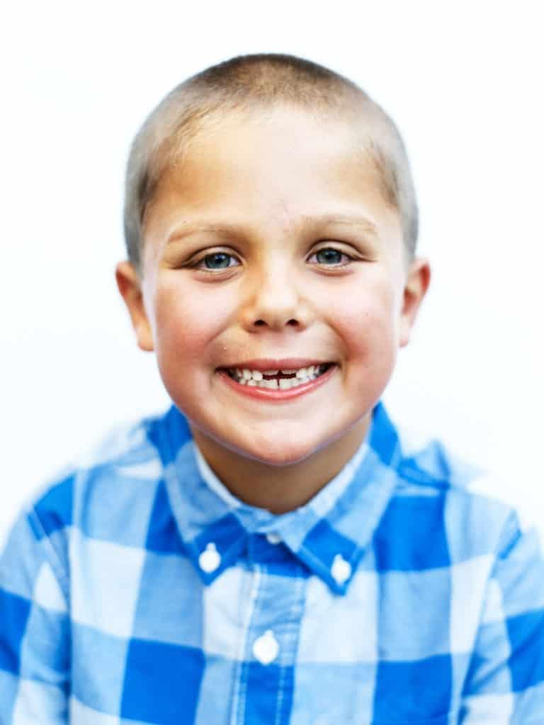 boy with missing teeth posing for potrait